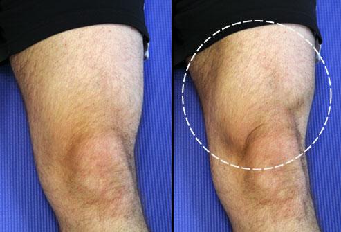 Quad Set - بهبود زانو درد