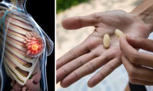 آیا ویتامین B17 سرطان را درمویتامین b17 ضد سرطان ان می کند؟
