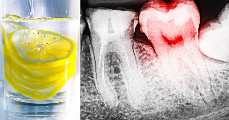 عوارض آبلیمو برای دندان