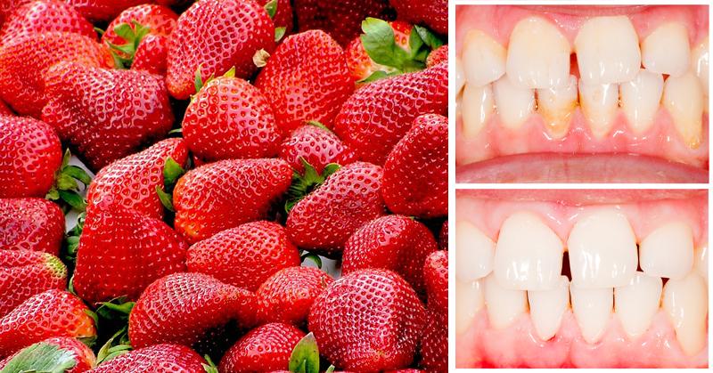 روش جرم گیری دندان و لثه در خانه