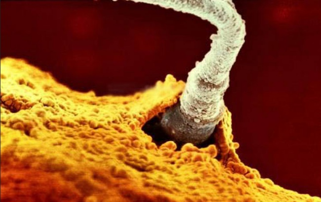 یکی از ۲۰۰ میلیون اسپرم پدر در غشا تخمک مادر نفوذ می کند.