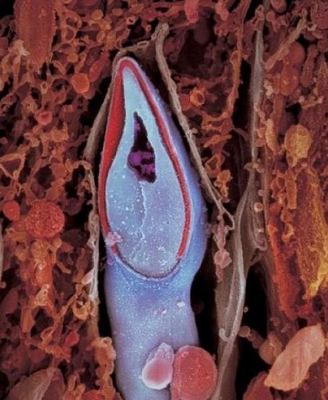 سر اسپرم شامل همه مواد ژنتیکی است.