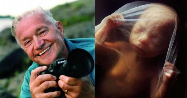 عکس های واقعی حیرت انگیز از داخل رحم مادر از لحظه لقاح تا تولد