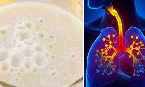 معجون ساده در درمان سرفه و برونشیت