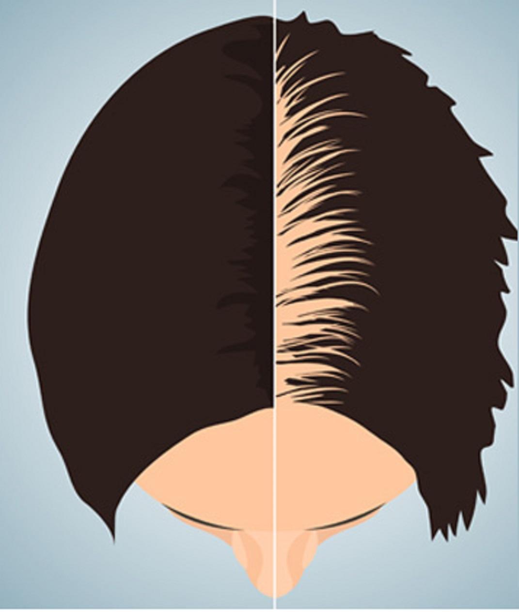 مدل های ریزش مو ارتباط ریزش مو و بیماری ها