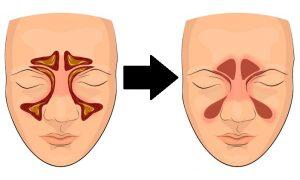 درمان عفونت سینوس ها با ماساژ