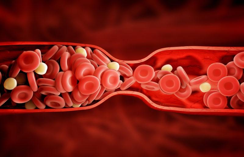 علائم لخته شدن خون