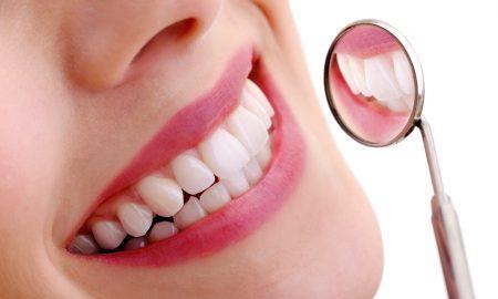 جرم گیری دندان با روش های خانگی