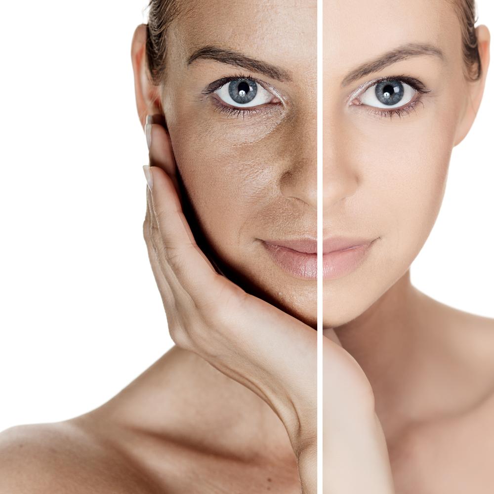 بازسازی پوست بدن و جوان سازی پوست