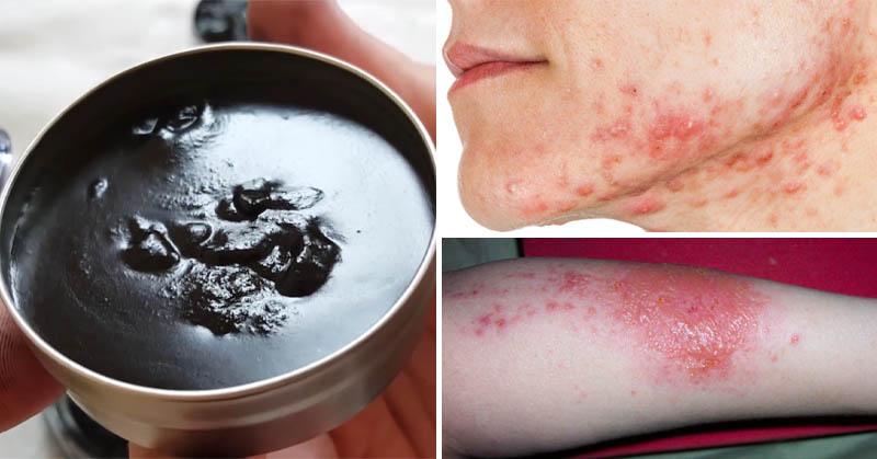 از مرهم سیاه میتوان به عنوان محصولی برای مراقبت از پوست و مو استفاده کرد.