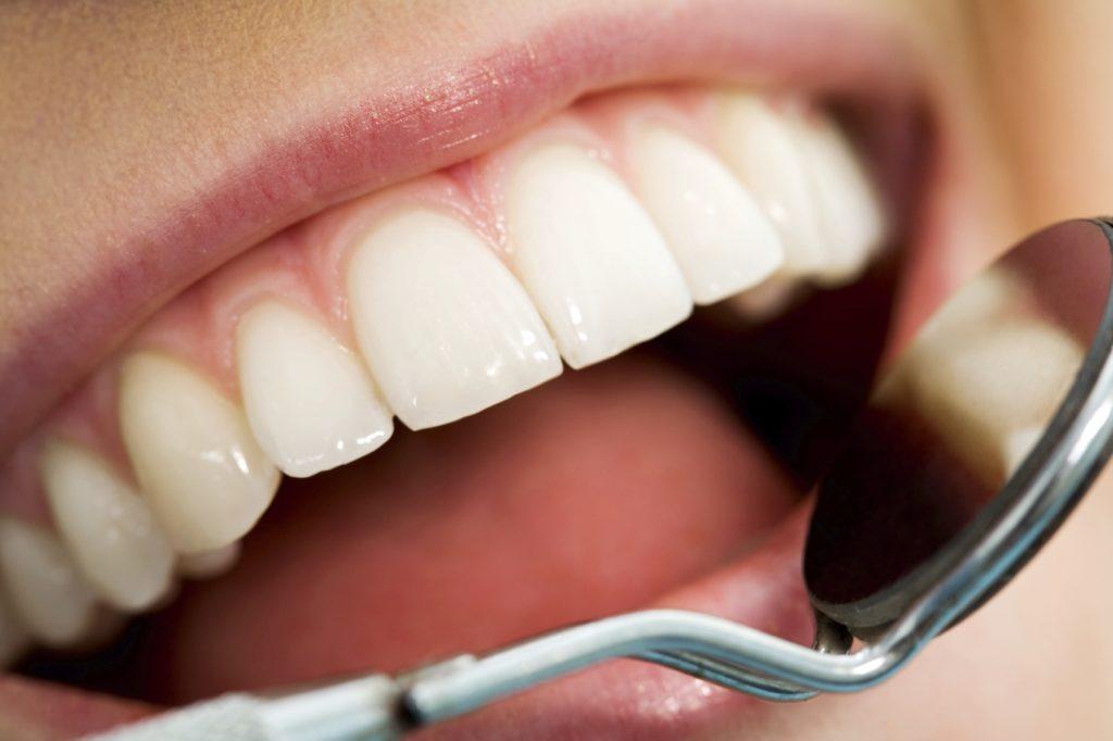 پنیر بافت دندانی را سالم نگه میدارد