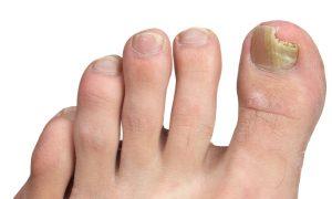 تشخیص بیماری از روی ناخن بیماری های ناخن