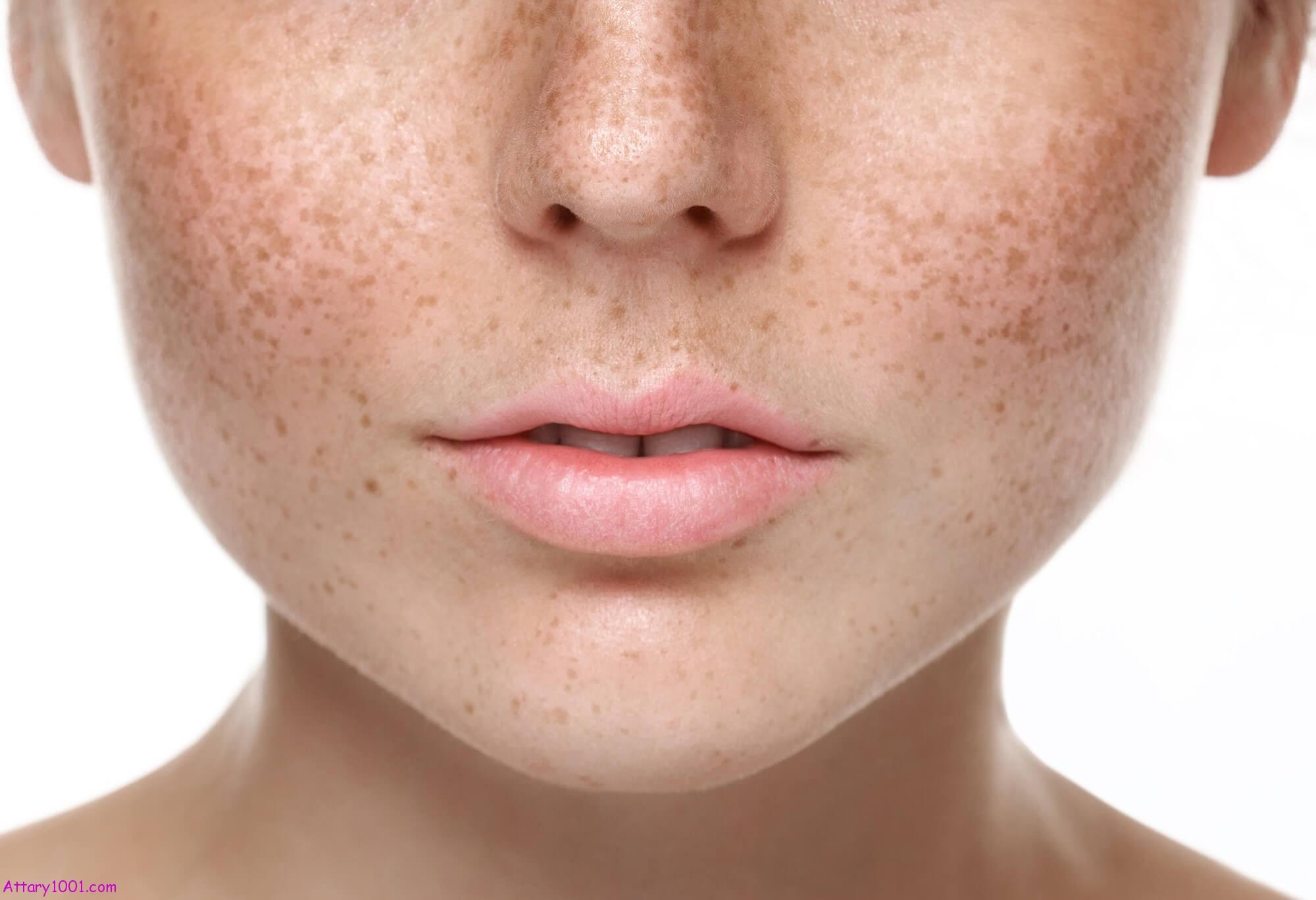 درمان های پوستی که نباید در خانه روی پوست تان انجام دهید
