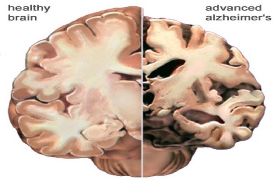 برای افزایش عمر از بیماری آلزایمر جلوگیری کنید