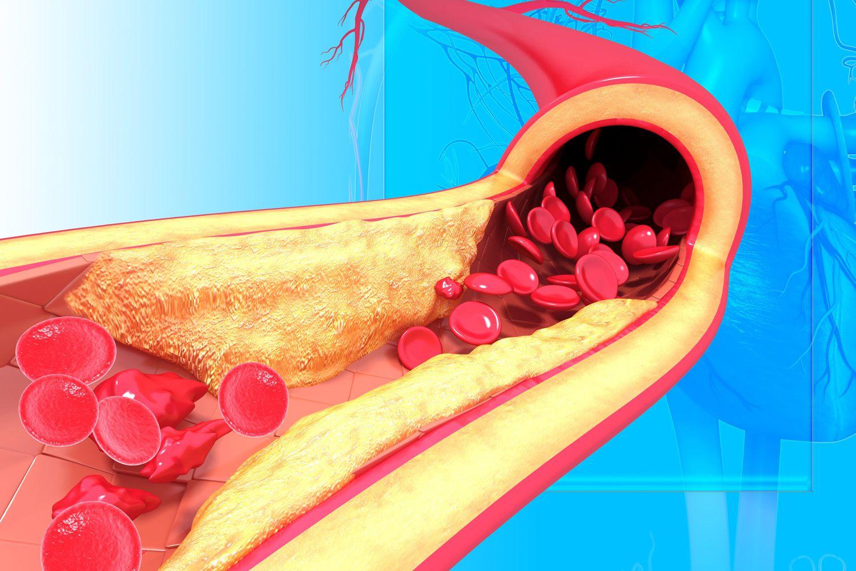 راه های کاهش کلسترول خون