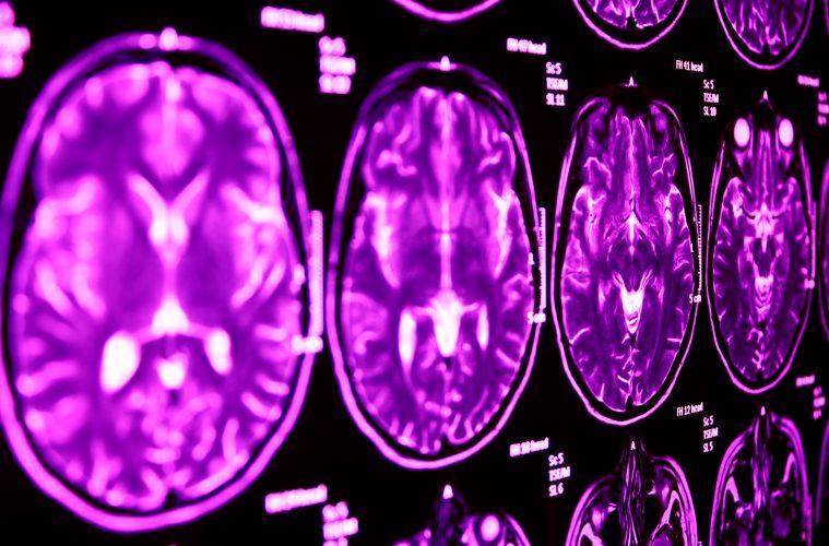 برخی واحدها در مغز افرادی که به صورت مزمن الکل مصرف میکردند فعالیت زیادی دارند