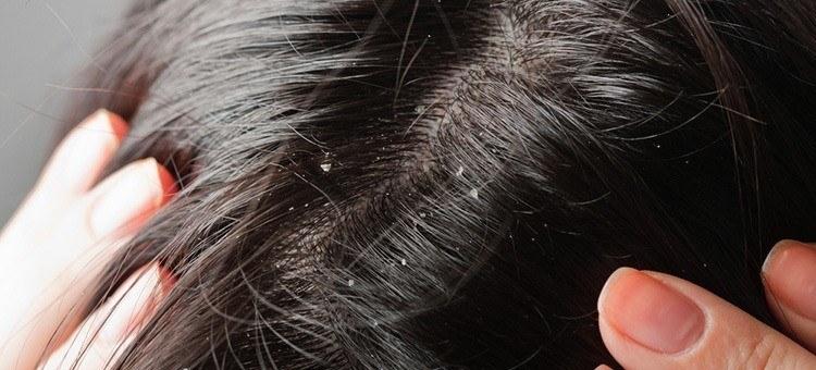 سرکه سیب برای رشد موی سر