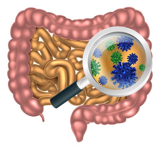 بیماری سیبو: یک بیماری آزاردهنده دستگاه گوارش و یک درمان ساده