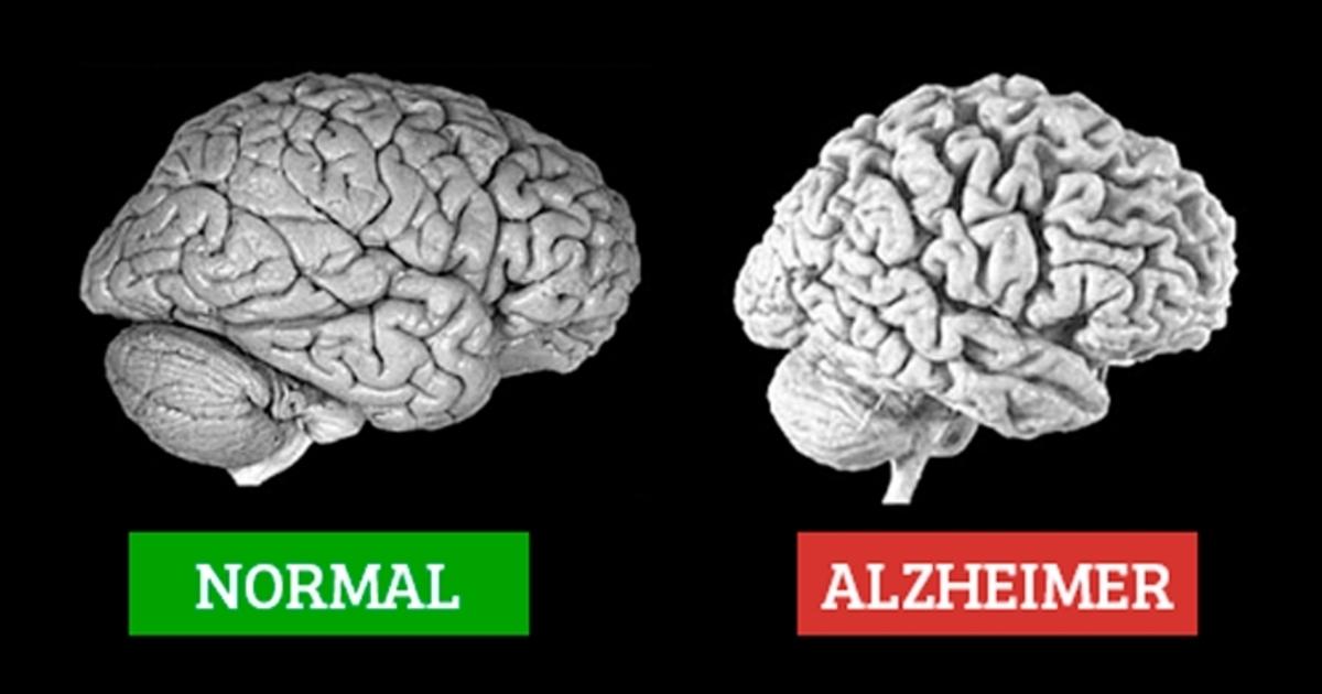 علت های آلزایمر و زوال عقل
