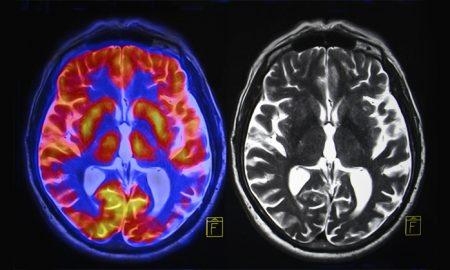 از بین رفتن سلول های مغز