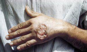بیماری سالک یا لیشمانیوز درمان سالک علت سالک