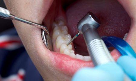 آیا درمان پوسیدگی دندان فقط پر کردن دندان است