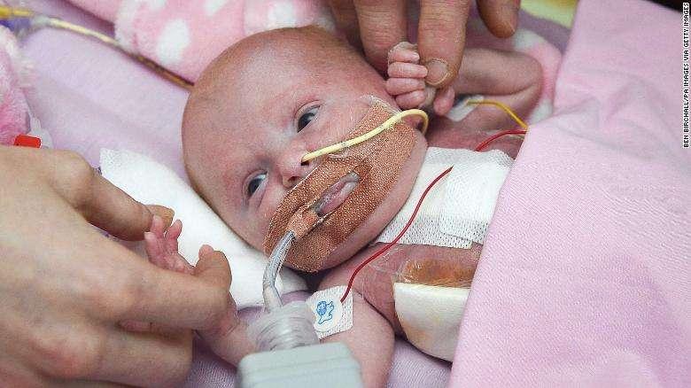 نوزادی با قلب بیرون از بدن