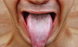 لکه های سفید روی زبان