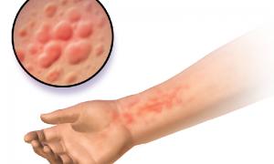 درمان های خانگی کهیر و قرمز و خارش پوست