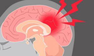 پیشگیری از سکته مغزی مجدد