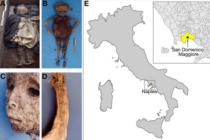 A) مومیایی 450 ساله یک پسر ایتالیایی در تدفین. B) مومیایی قبل از کالبد شکافی. C و D) محل خارش یا جوش - که در ابتدا به عنوان باکتری شناخته شده، اما احتمالا نشانه های هپاتیت B، بر روی صورت و بازوی کودک است. E) کلیسای سان دامینکو ماژور در ناپولی ایتالیا
