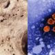 این مومیایی ۴۵۰ ساله حاوی قدیمی ترین بیمار هپاتیت B