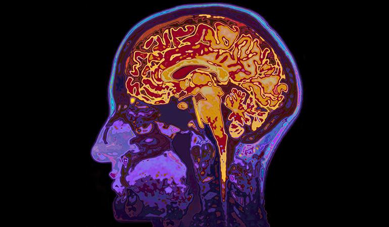 ویتامین B را برای تقویت حافظه مصرف کنید