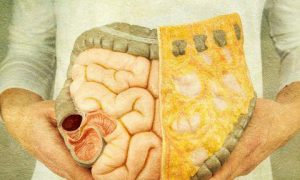 سرطان کولون روده بزرگ