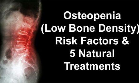علت پوکی استخوان شدید و درمان استئوپنیا