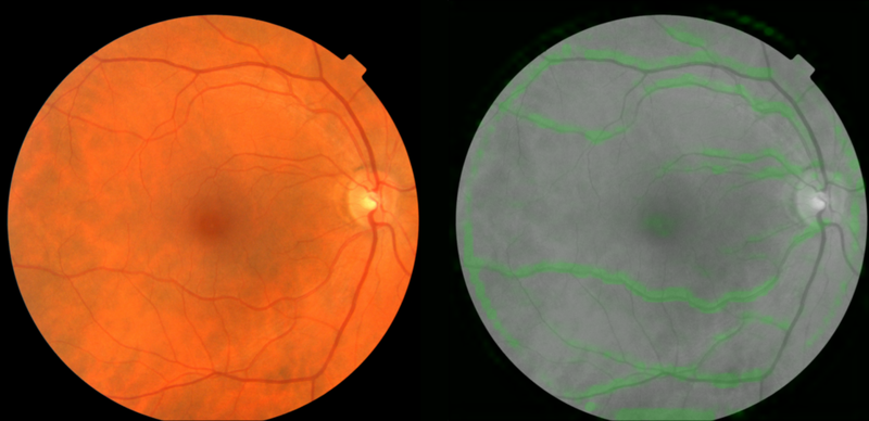 دو تصویر از فوندوس یا قسمت داخلی چشم. در سمت چپ شما یک تصویر عادی از شبکیه مشاهده می کنید. در سمت راست نشان داده شده که چگونه الگوریتم گوگل از عروق خونی (به رنگ سبز) برای پیش بینی فشار خون استفاده می کند.