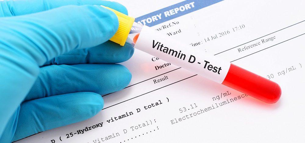 آزمایش ویتامین دی