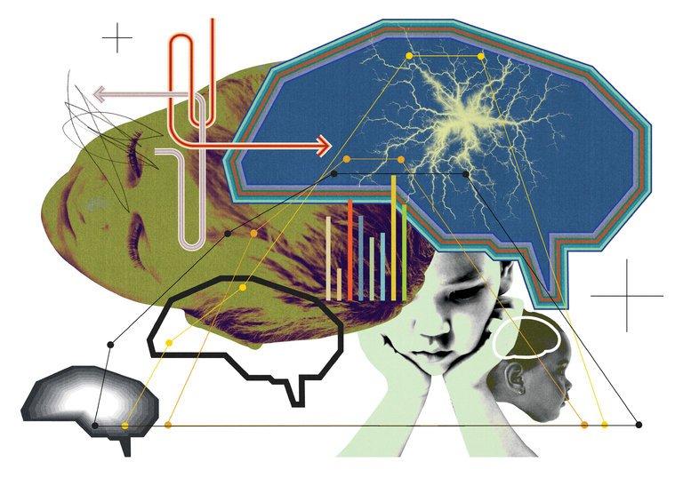 اسکن مغزی از کودکان و تشخیص بموقع بیش فعالی