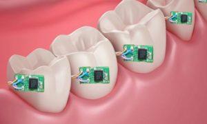 حسگر کنترل تغذیهای که روی دندان نصب میشود