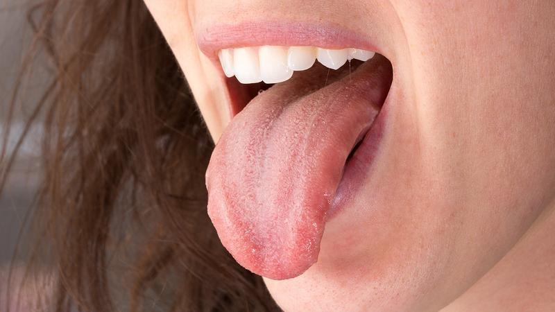 زخمهای دهان به سرعت ترمیم میشوند