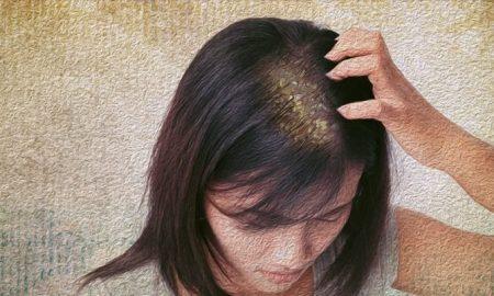 رابطه شوره سر و ریزش مو آیا شوره سر باعث ریزش مو می شود؟