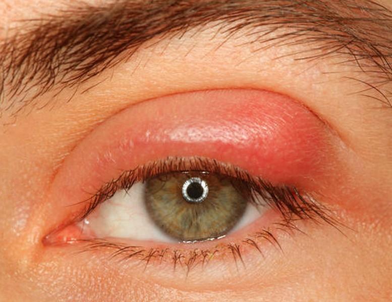 انواع عفونت چشم