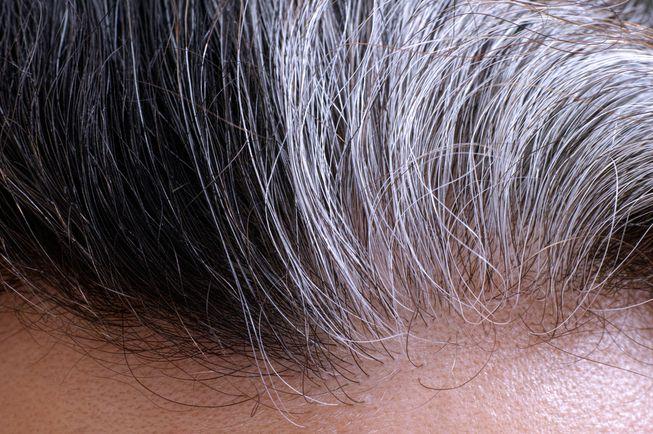 علت اصلی سفید شدن مو