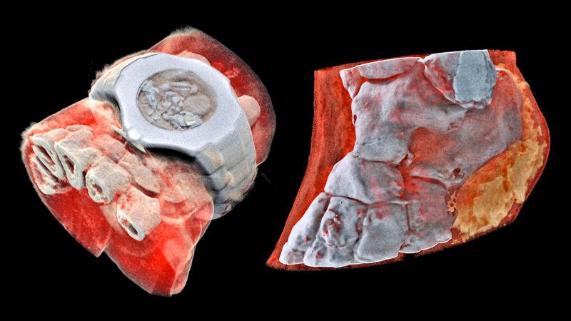 ثبت اولین تصاویر سه بعدی رنگی از بدن انسان با اسکنر Medipix3