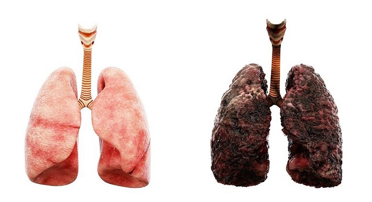 ریه سیگاری ها