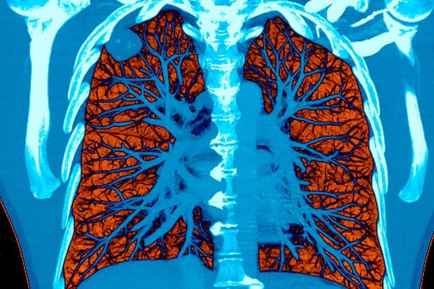 بدن توانایی خوبی در ترمیم اعضای صدمه دیده ناشی از سیگار دارد
