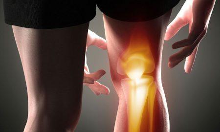 درد کشکک زانو
