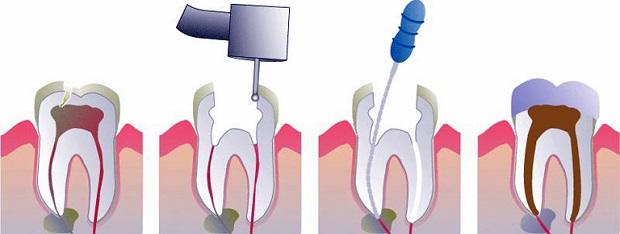 عصب کشی دندان در بخش کانال ریشه صورت میگیرد