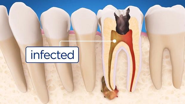 پوسیدگی از یک دندان به دندان دیگر سرایت کرده و میتواند دندانها را خراب کند