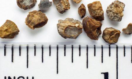سنگ کلیه: همه چیز درباره دفع سنگ کلیه و جلوگیری از سنگ سازی با روشهای طبیعی
